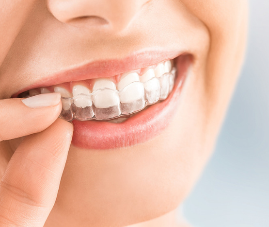 orthodontics dentistry in Stepney and Western Adelaide