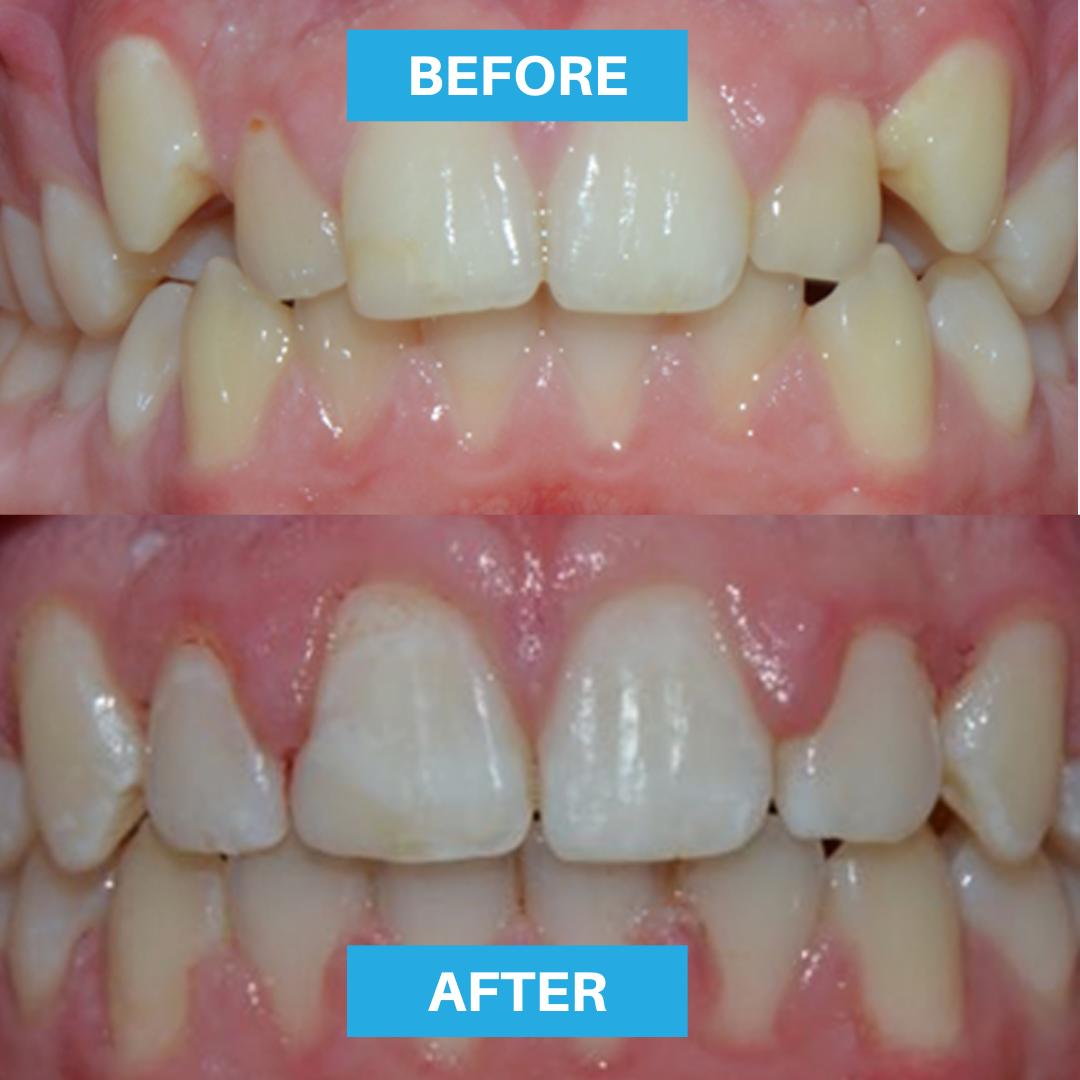 senior master fast braces adelaide dentist